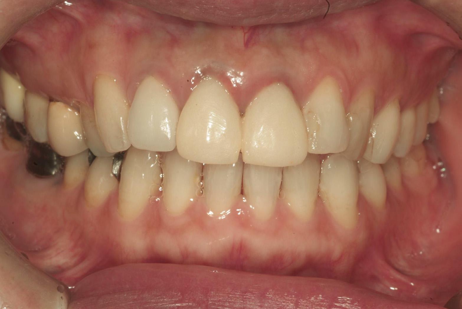 痛み 歯茎 の